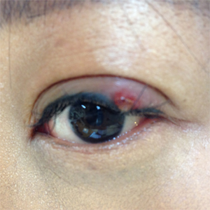 Using ENT01Ag remote electrode for treatment of eyelid inflammation